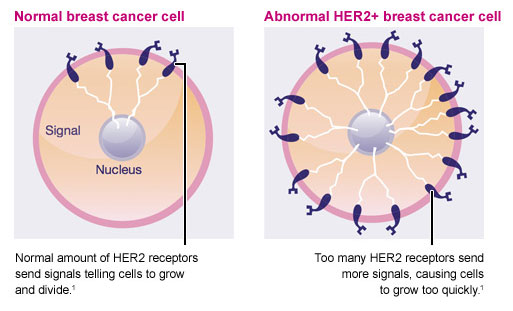 What is HER2-positive breast cancer? CTCA